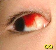 ������ hemorrhagic conjunctivitis